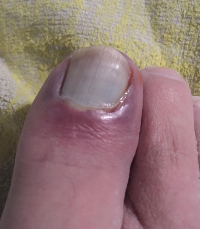 Photo of an injured toe.